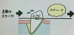 矯正でなぜ歯は動くのか❸