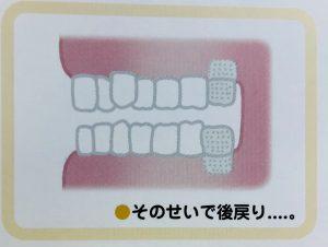 矯正で歯を抜くのはどうして⑤