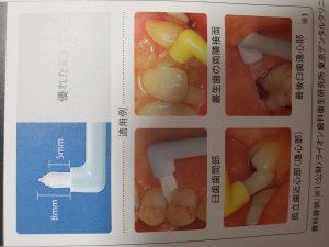 歯ブラシ以外の補助用具